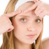 acabar con el acné